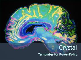 Cool new PPT layouts with nervous system - artificially coloured mri scan backdrop and a ocean colored foreground.