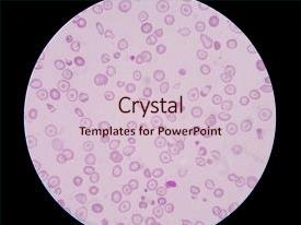 Slide deck consisting of blood smear cbc test showing background and a  colored foreground.