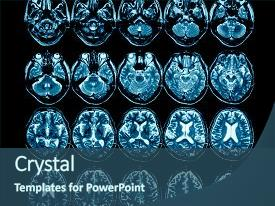 Presentation featuring brain computed tomography mri background and a ocean colored foreground.
