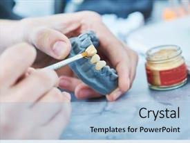 Dental Implant Powerpoint Templates W Dental Implant Themed