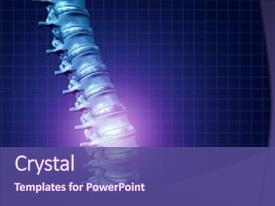 5000 osteoporosis powerpoint templates w osteoporosis themed slide deck consisting of glowing highlight as a medical background and a violet colored foreground toneelgroepblik Gallery