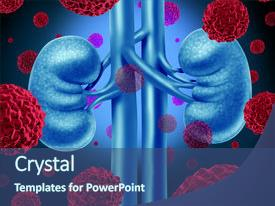 Top Renal Cancer Powerpoint Templates Backgrounds Slides