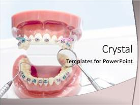 Orthodontic powerpoint templates w orthodontic themed backgrounds audience pleasing slides consisting of model and dentist tool backdrop and a sky toneelgroepblik Gallery