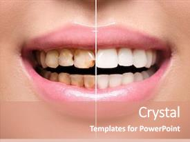 5000+ Dental Caries PowerPoint Templates w/ Dental Caries-Themed