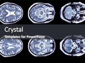 Slide deck consisting of brain computed tomography background and a dark gray colored foreground