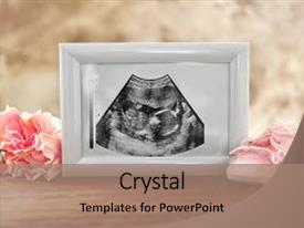 PPT theme featuring medical embryo - ultrasound picture of baby background and a coral colored foreground.
