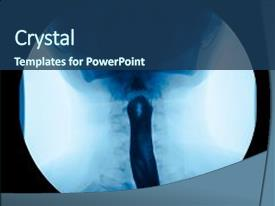 1000 gastrointestinal powerpoint templates w gastrointestinal audience pleasing presentation theme consisting of x ray upper gastrointestinal backdrop and a ocean colored toneelgroepblik Gallery