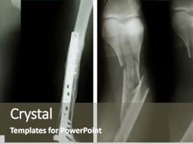 Knee X Ray Powerpoint Templates W Knee X Ray Themed Backgrounds
