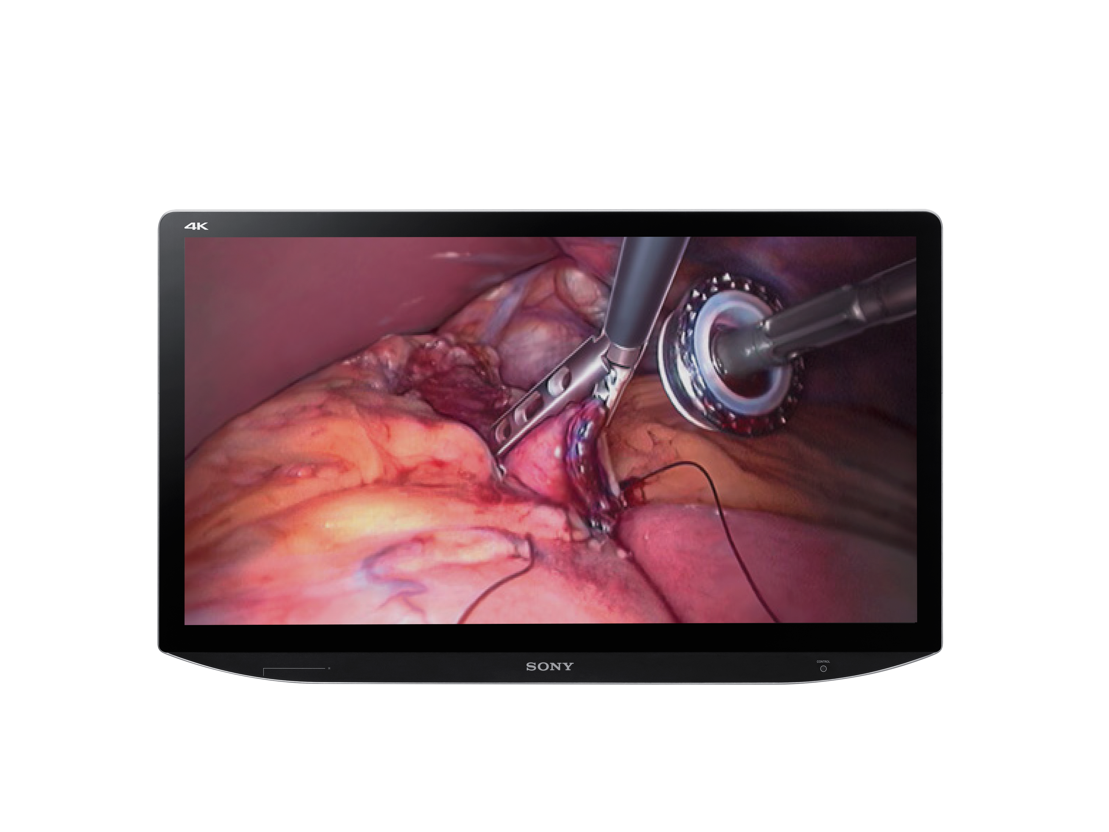Sony Transforms Robotic Surgery with 4K 3D Technology at AUA