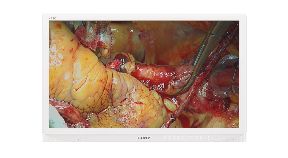 sony lmd-3200md 4k medical monitor