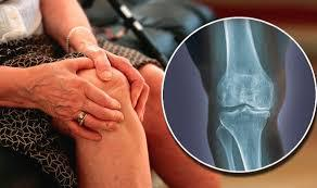 Things That Worsen Knee Osteoarthritis | Everyday Health
