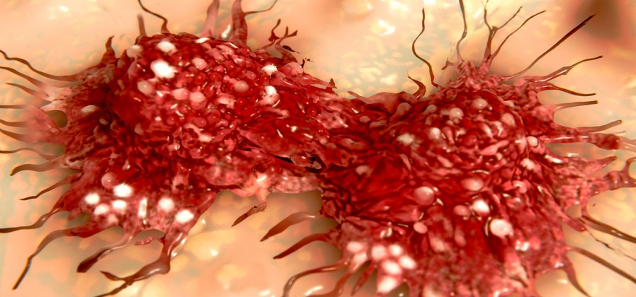 Increased cancer cell growth