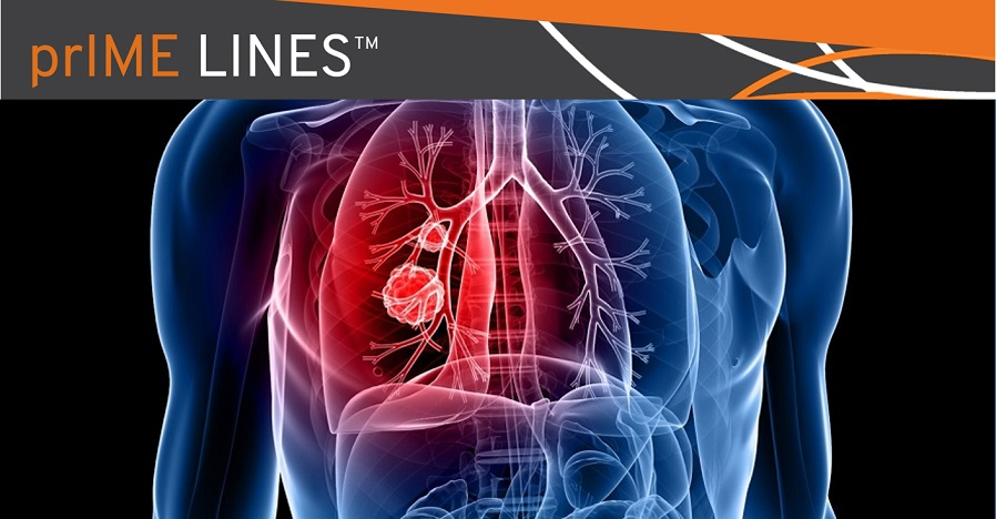 immunotherapy-combo-for-squamous-NSCLC
