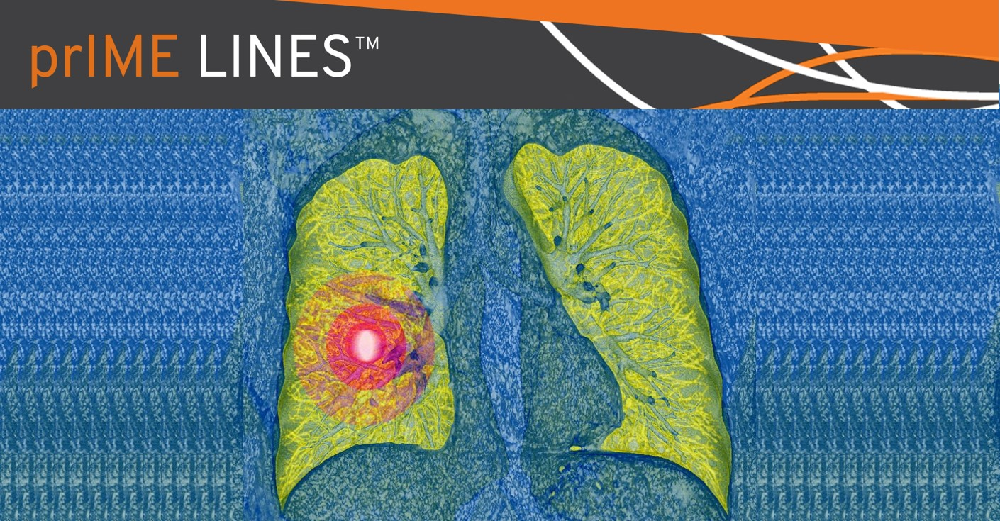 primelines-lorlatinib-effective-phase-1-nsclc-study