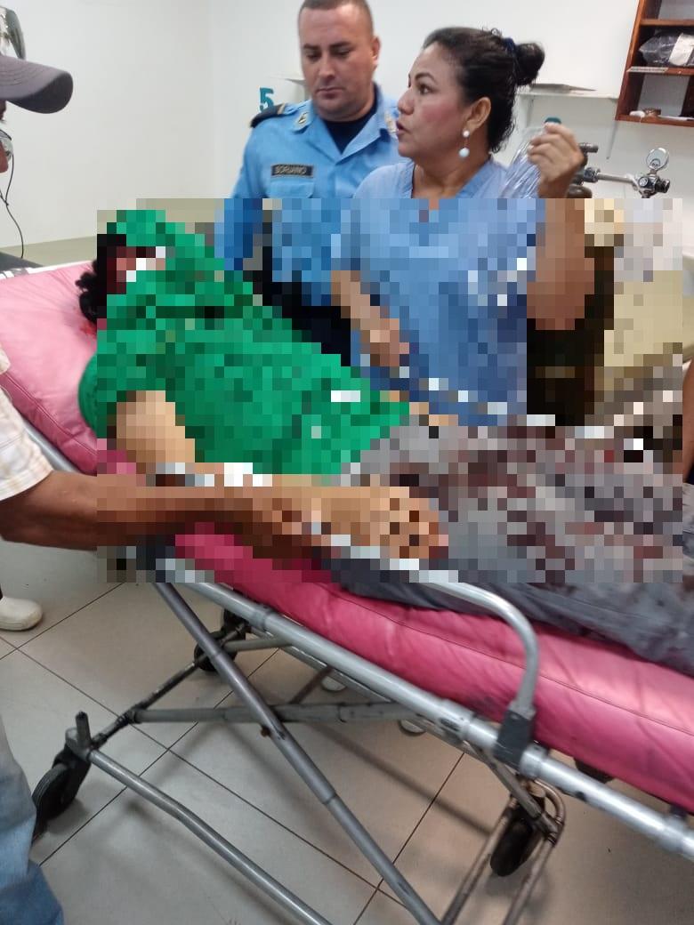 Explosión de bomba molotov desfigura rostro de joven en Choluteca