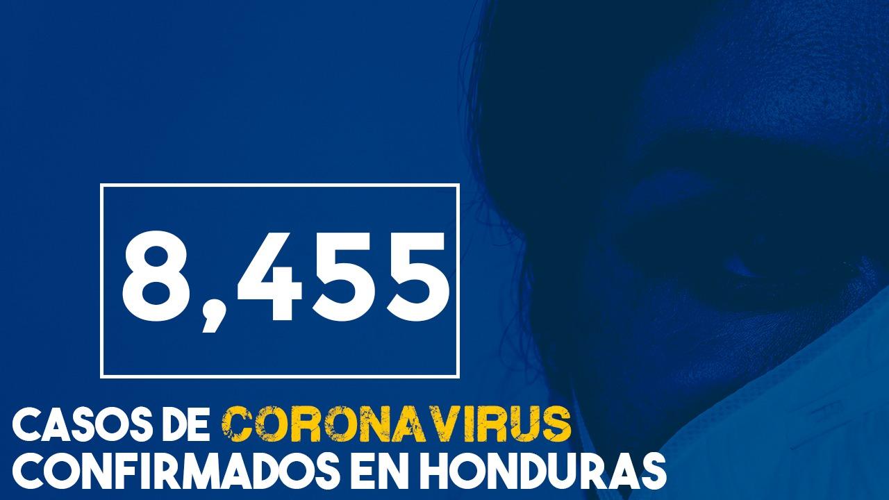 Honduras: A 8,455 sube cifra de contagios y 310 fallecidos por covid-19