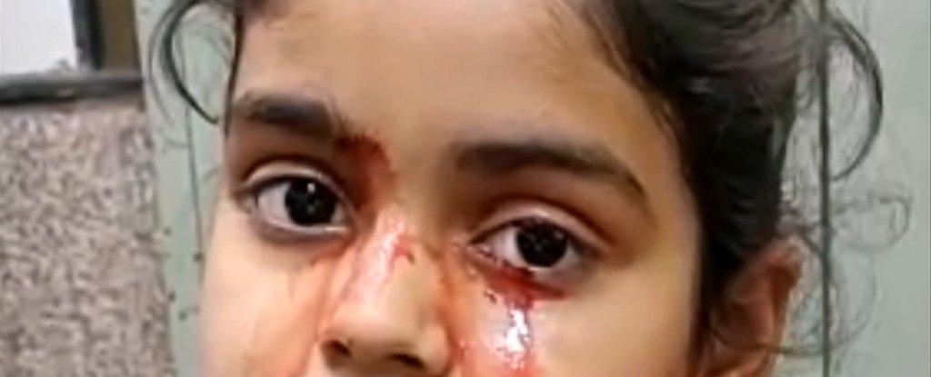 Niña llora lágrimas de sangre y médicos quedan atónitos
