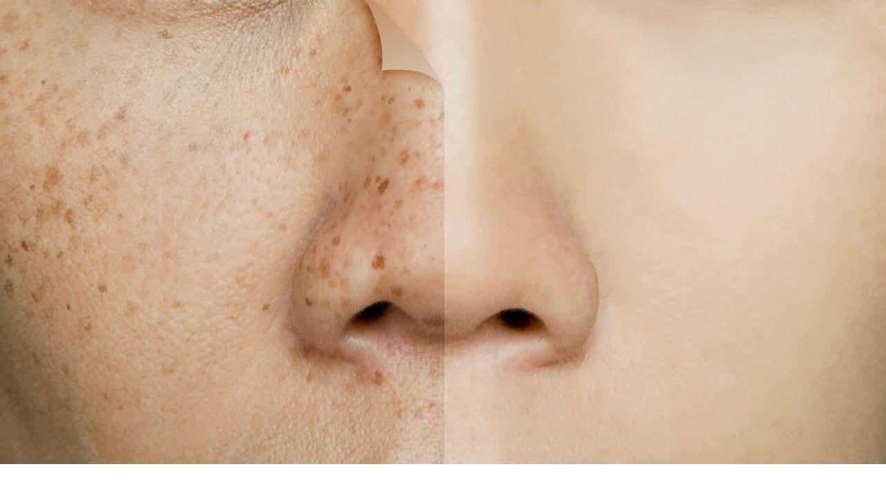 Olvídate de las manchas en la piel con exfoliante natural a base de arroz, leche y azúcar, ¿cómo prepararlo?