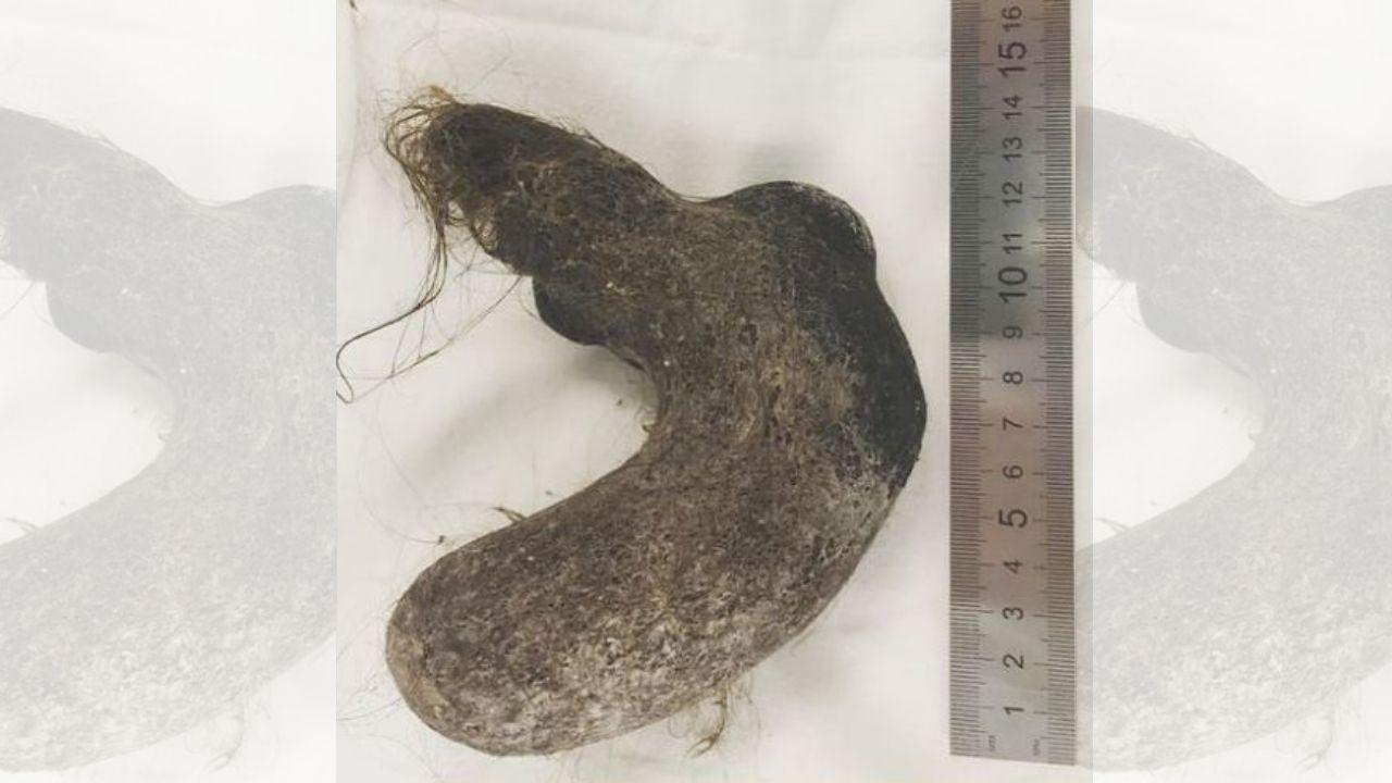 Extraen una bola de pelos de 15 centímetros de largo del estómago de una niña de 12 años