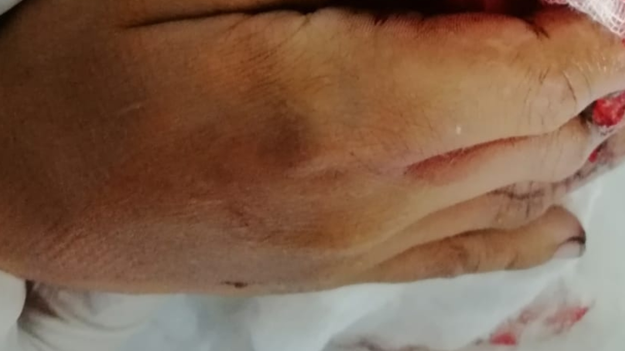 Menor de edad pierde parte de sus dedos al quemarse con pólvora en Honduras