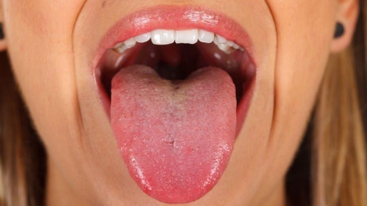 'Lengua covid' es el nuevo síntoma del coronavirus, ¿En qué consiste?