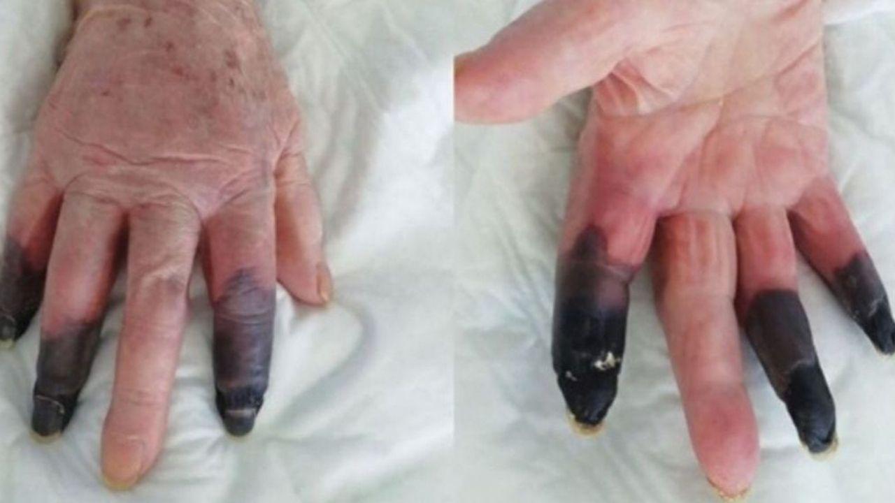 Le amputan tres dedos a una mujer por un nuevo e inesperado efecto secundario del covid-19