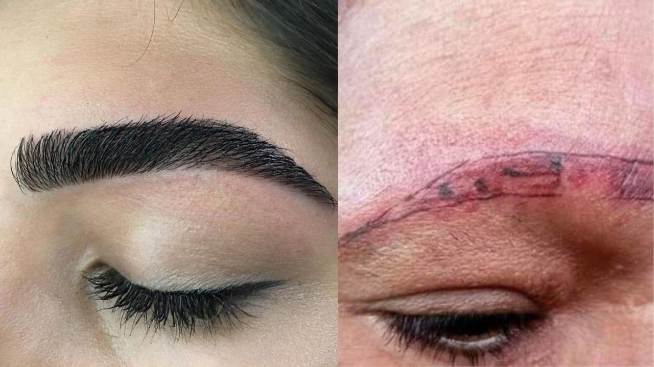Mujer quedó sin cejas y con una grave quemadura tras realizarse una micropigmentación