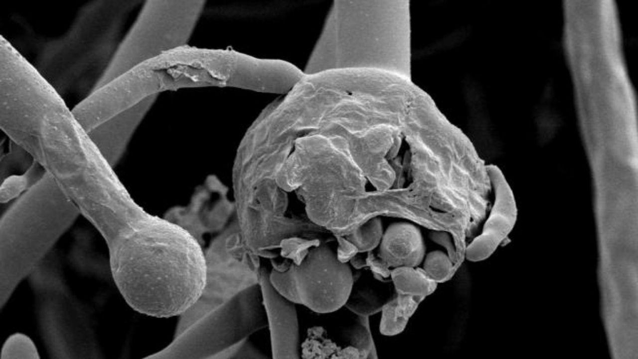 Lo que debes saber del 'hongo negro' que ataca a pacientes covid y puede desfigurarles el rostro