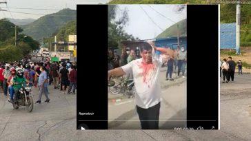 afectado en protesta