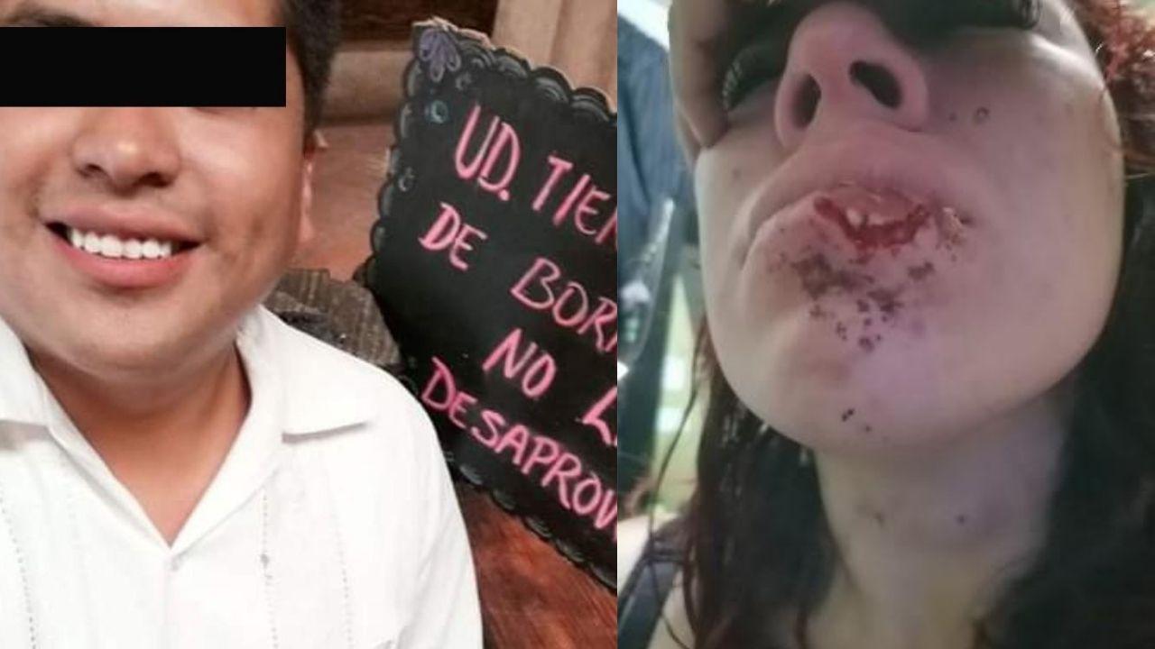 Hombre le arrancó parte del labio inferior a su pareja en un arranque de ira