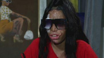 joven desfigurada su rostro
