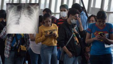 Jovenes realizando fila con su respectiva mascarilla por afectación en los pulmones por covid en honduras