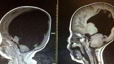 radiografia de cabeza de menor