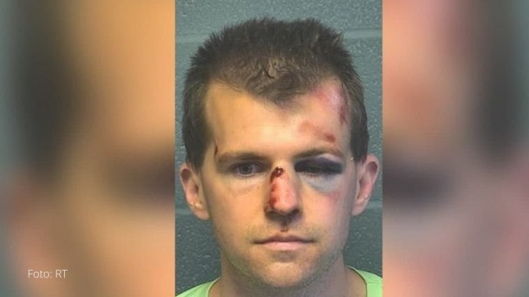 hombre luce la cara golpeada