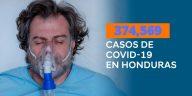 casos covid-19 en Honduras