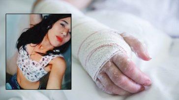 mujer es quemada por su pareja sentimental en Bogota