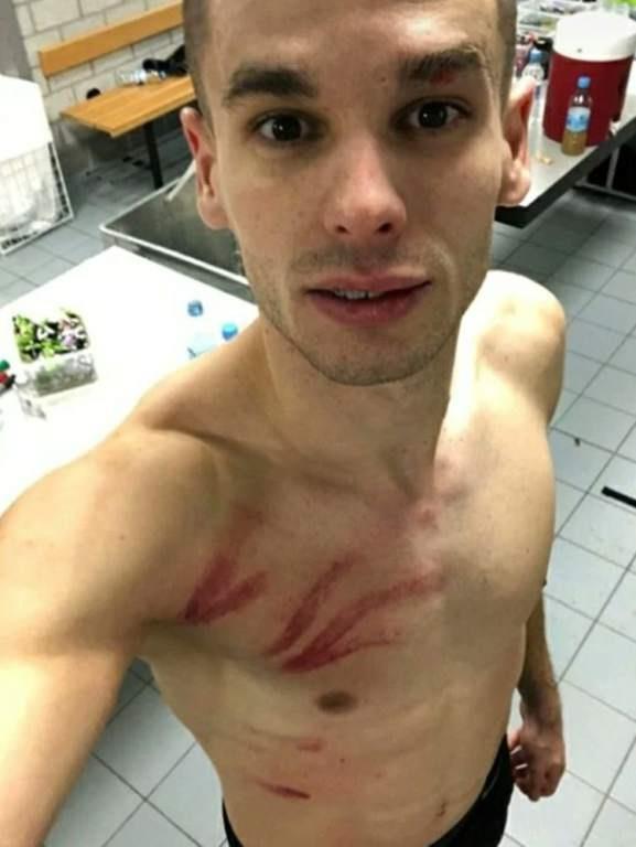 Mijat Gacinovic, muestra las heridas por la brutal patada.