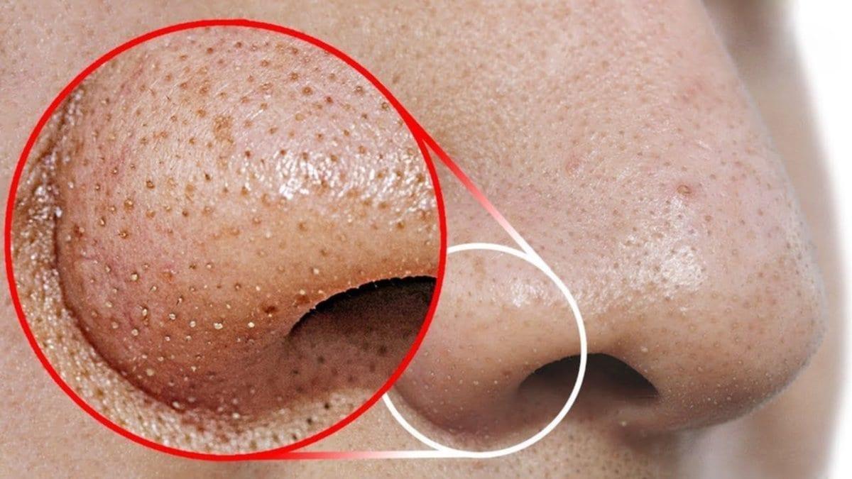 Para quitarlos es necesaria una correcta higiene facial, y existen muchas alternativas para tratarlos (mascarillas, cremas etc) pero si la producción es exagerada debe acudir al médico.