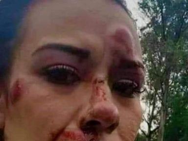 ¡Reprochable! Enfermera mexicana es atacada a pedradas y le exigen no volver por miedo a contagiarlos