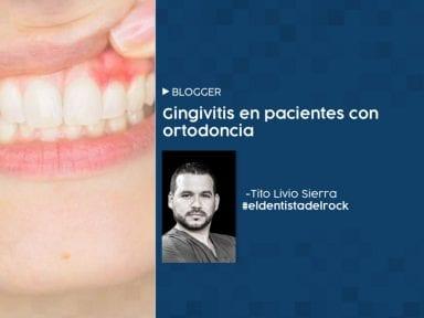 Gingivitis en pacientes con ortodoncia