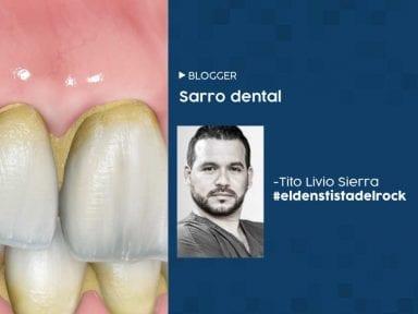 Sarro dental: todo lo que debes saber y cómo sanarlo