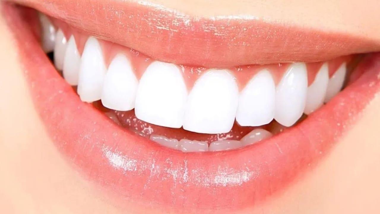 Cuando las personas tienen blanca la piel,  sus dientes tienden a verse más amarillos y si tienen piel más oscura se ven más blancos por el contraste.