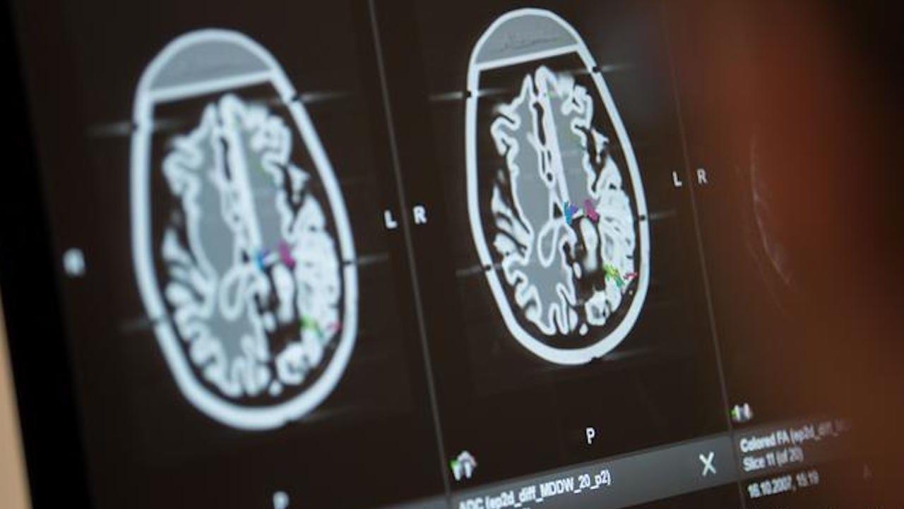 Los cerebros de tres pacientes que murieron por complicaciones graves relacionadas con el coronavirus mostraron también rastros del virus, en diversos grados.