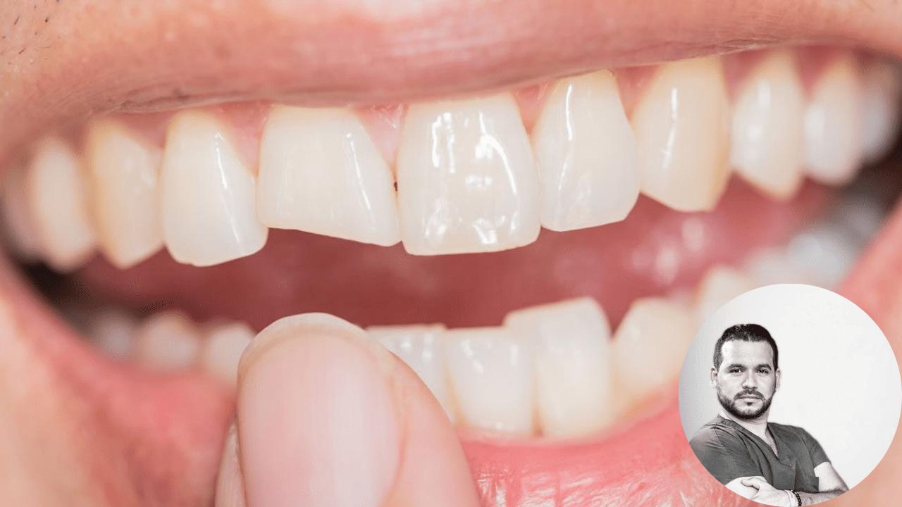 Las consecuencias que pueden ocurrir van desde dolores intensos hasta la perdida del diente.