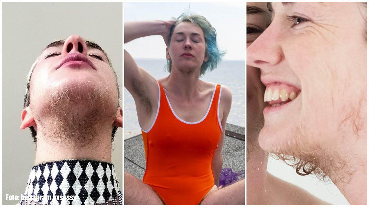Mira aquí las fotografías de la mujer de Inglaterra que dejó depilarse y ahora hasta la comparan con un hombre. ¡Tiene vellos en todo el cuerpo!