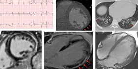 Which Modality and When? New Guidance for Cardiac Imaging in COVID-19
