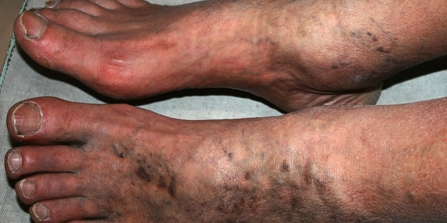 COVID-19 Patients With Arterial Leg Thromboses Risk Amputation and Death