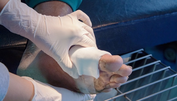 Critical Limb Ischemia During COVID Lessons for Care and Clinical Trials