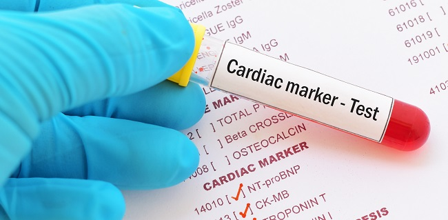 Myocardial Injury Seen in Over One-Third of Hospitalized COVID-19 Patient