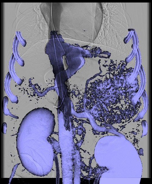 A dog undergoing coil embolization of a liver portocaval shunt using CT fusion and 3-D roadmap. (Photo Credit: Brian Scansen)